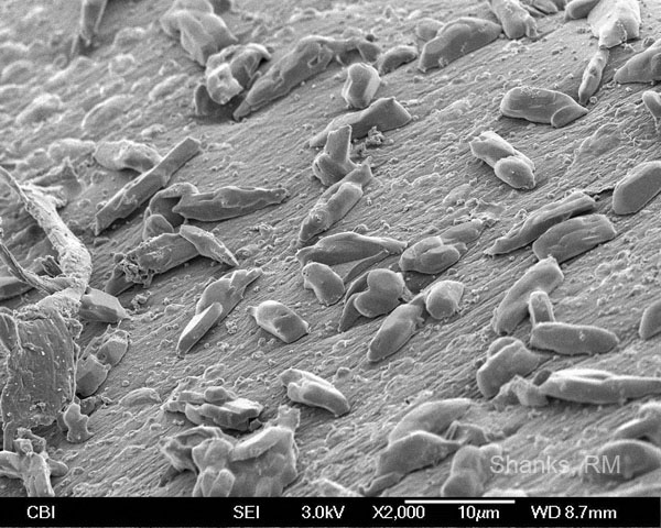SEM of Dirty Contact Lens