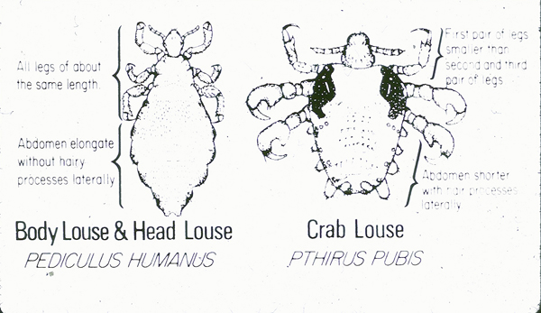 Louse types